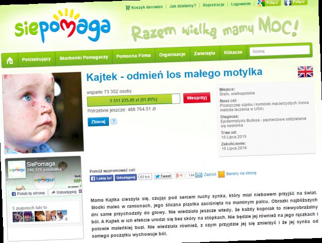 Fragment strony SiePomaga, na której zbierane są pieniądze dla Kajtka.