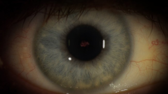 Graphic of the Ebola eye.
